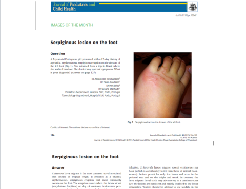 Serpiginous lesion on the foot_JPCH
